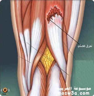 لحالات التمزق العضلي وكيفية إسعاف
